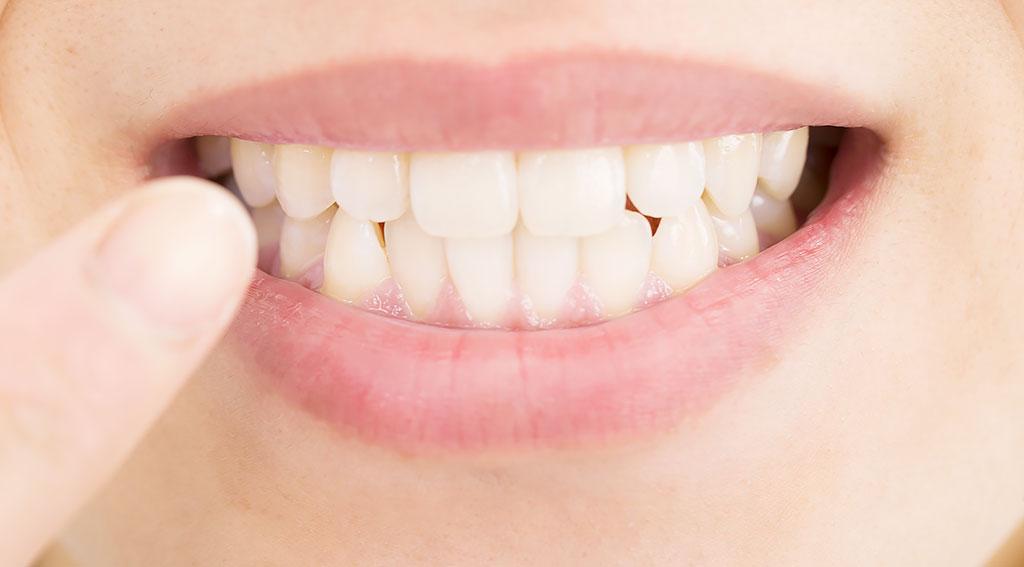 矯正歯科治療で治せる歯の状態