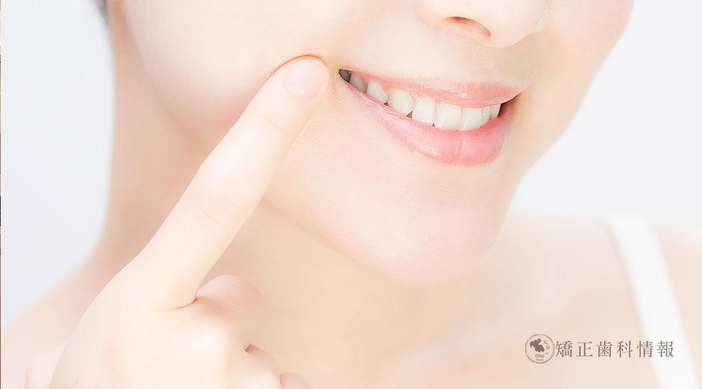 見えない歯列矯正