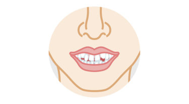 歯がデコボコ、ガタガタの「叢生」とは