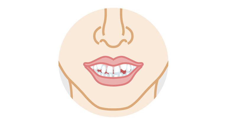 歯がデコボコ、八重歯