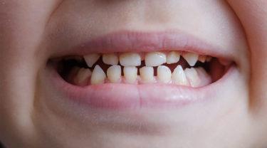 すきっ歯の歯並び(空隙歯列)