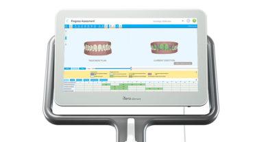 正確な歯型が取れる iTero Element