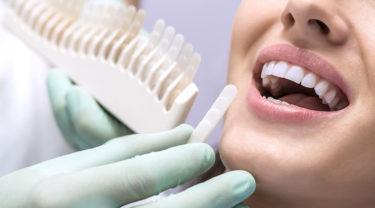 歯列矯正後のホワイトニングについて